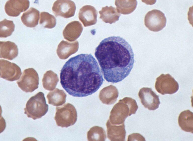 Microscopy view of Monocytes