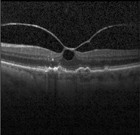 Denoising macular layers