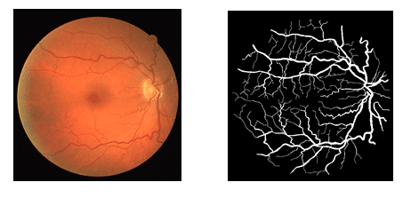 Deep Learning for Vessel Segmentation in Fundus Images