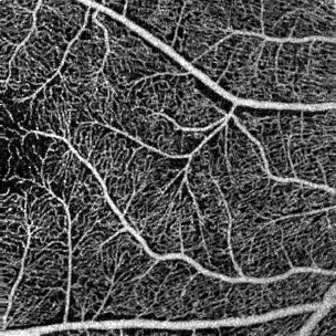 Optical coherence tomography angiography
