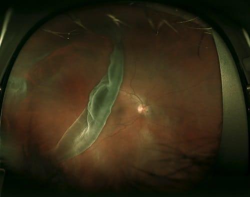 Giant Retinal Tear