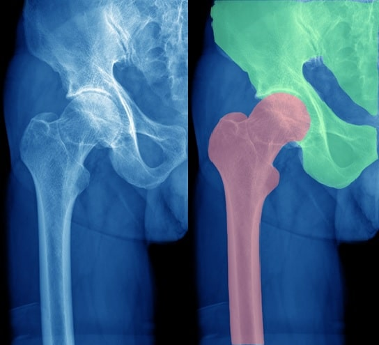 Orthopedic Surgery - CT Segmentation