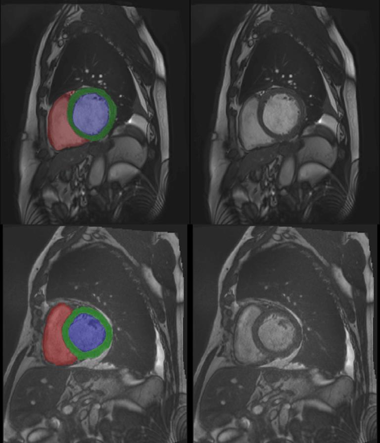 Cardiac MRI 3D automatic segmentation