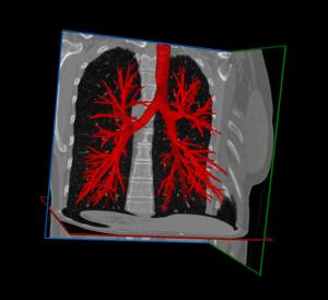 Lung Segmentation