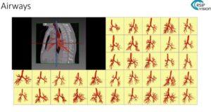 Segmentation in CT
