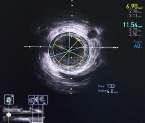 Intravenous Ultrasound