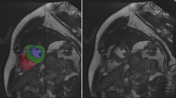 Cardiac MRI Heart Chambers Segmentation