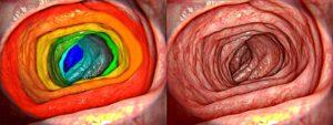 Healthy gut - 3D Rendering