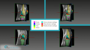 Automated Assessment of Cartilage Damage